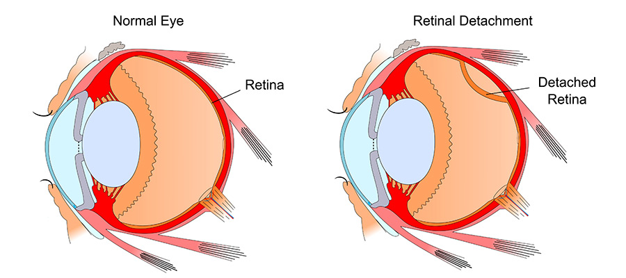 diagram of retina detachment